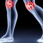 Przyczyny bólu stawów